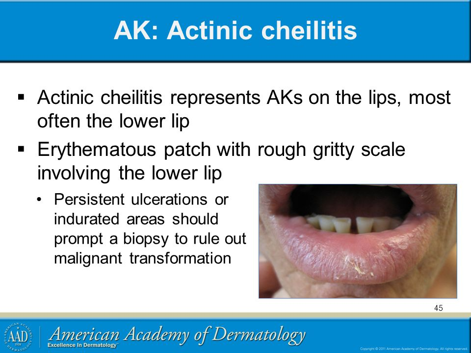 AK: Actinic cheilitis Actinic cheilitis represents AKs on the lips, most often the lower lip.