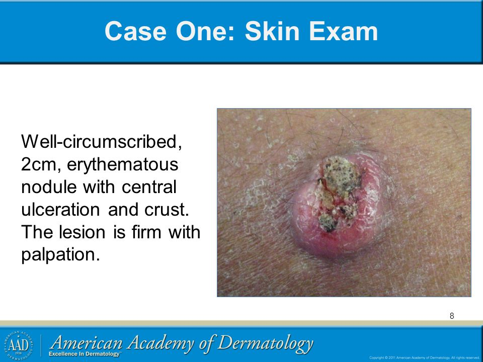 Case One: Skin Exam Well-circumscribed, 2cm, erythematous nodule with central ulceration and crust.