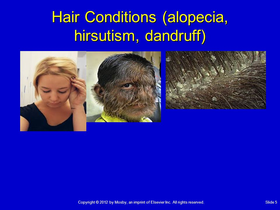 Hair Conditions (alopecia, hirsutism, dandruff)