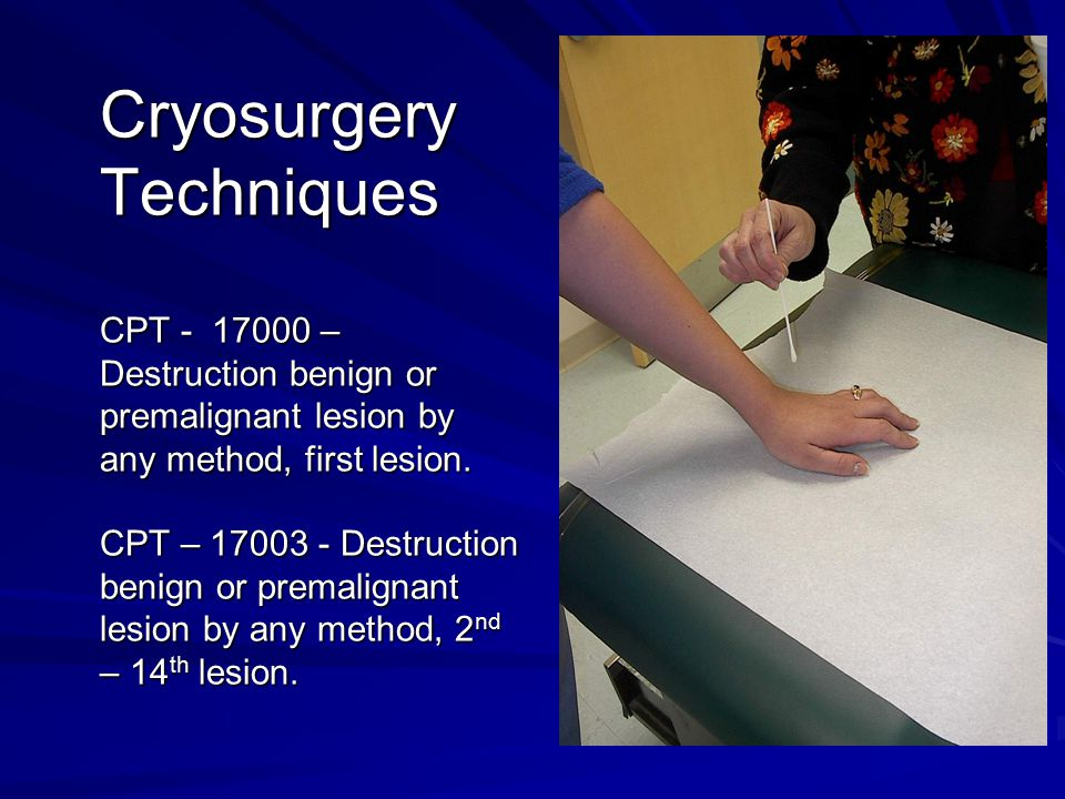 Cryosurgery Techniques CPT - 17000 – Destruction benign or premalignant lesion by any method, first lesion.