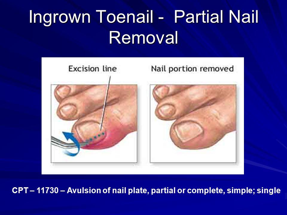Ingrown Toenail - Partial Nail Removal