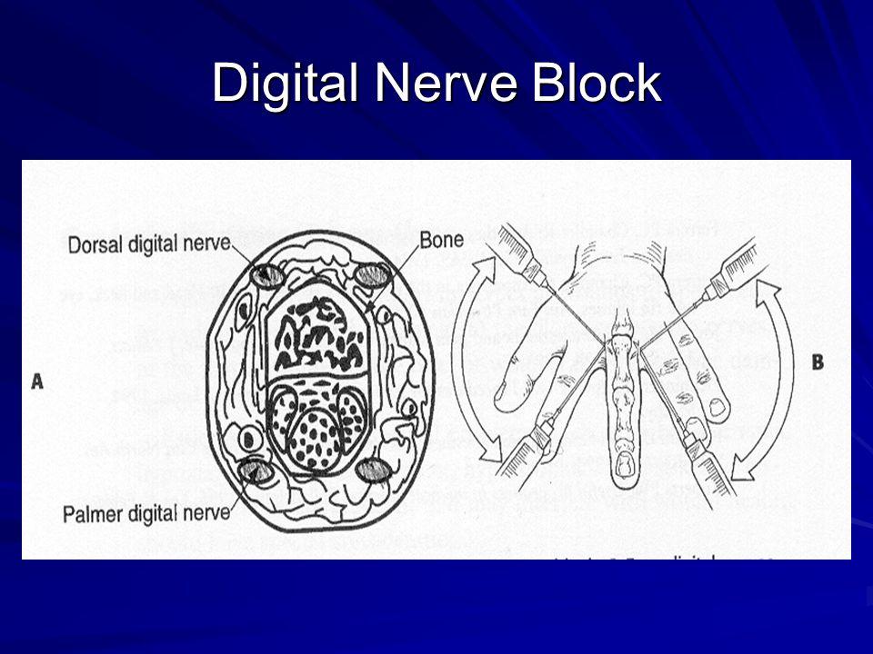 Digital Nerve Block