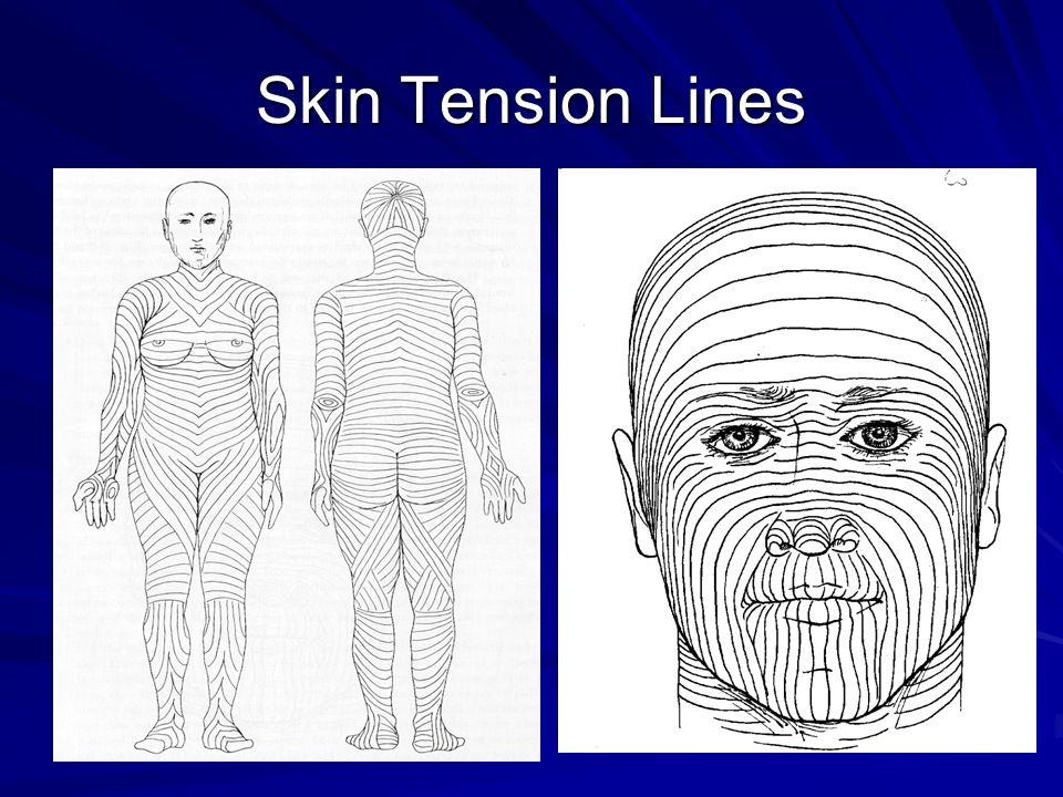 Skin Tension Lines