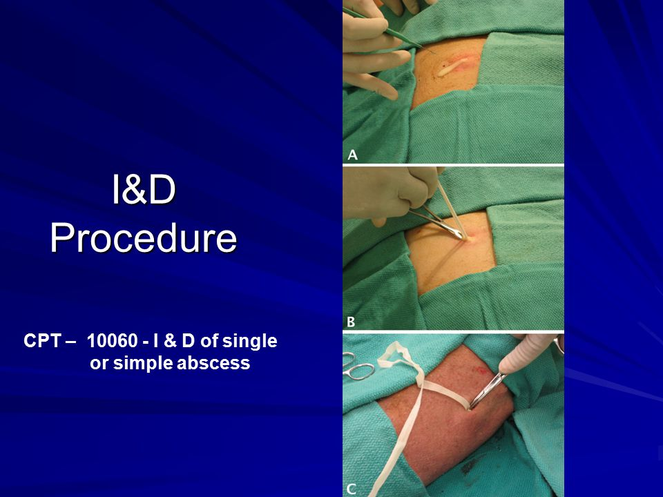 I&D Procedure CPT – 10060 - I & D of single or simple abscess