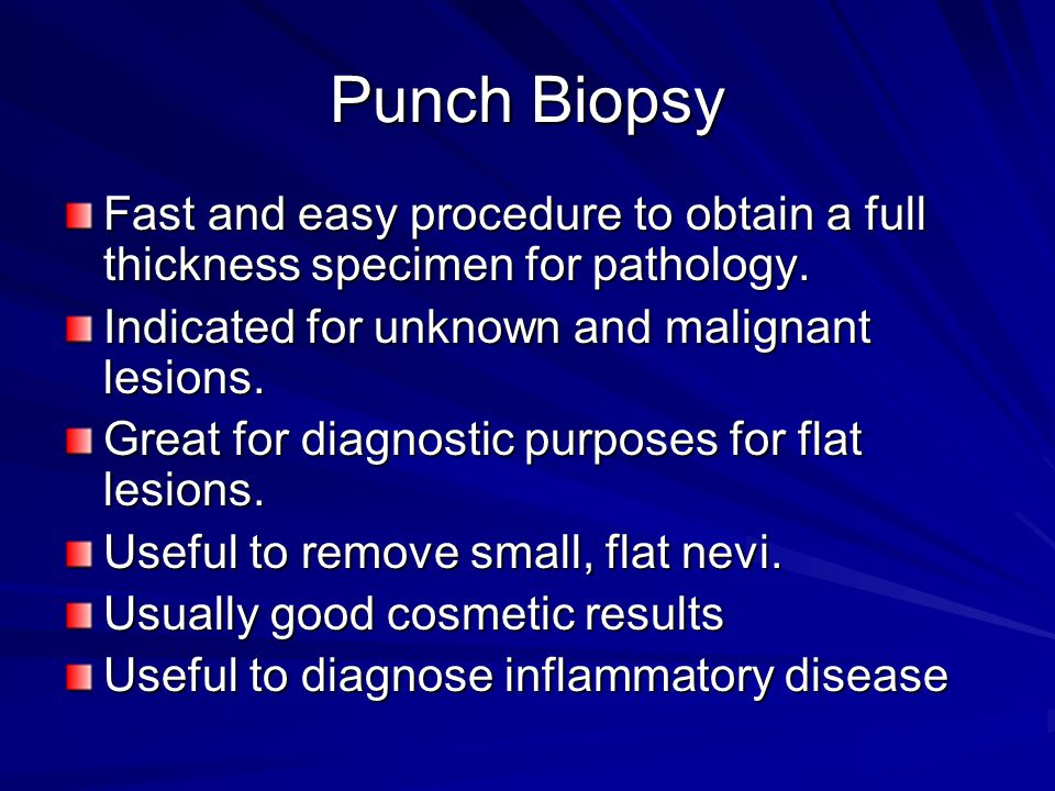 Punch Biopsy Fast and easy procedure to obtain a full thickness specimen for pathology. Indicated for unknown and malignant lesions.