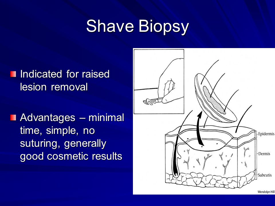 Shave Biopsy Indicated for raised lesion removal