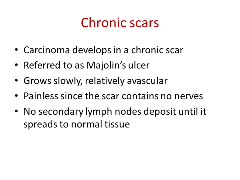 Chronic scars Carcinoma develops in a chronic scar