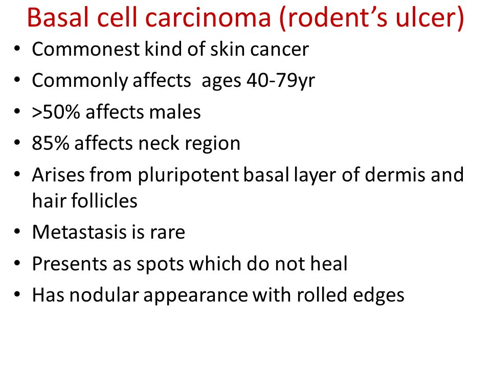 Basal cell carcinoma (rodent's ulcer)