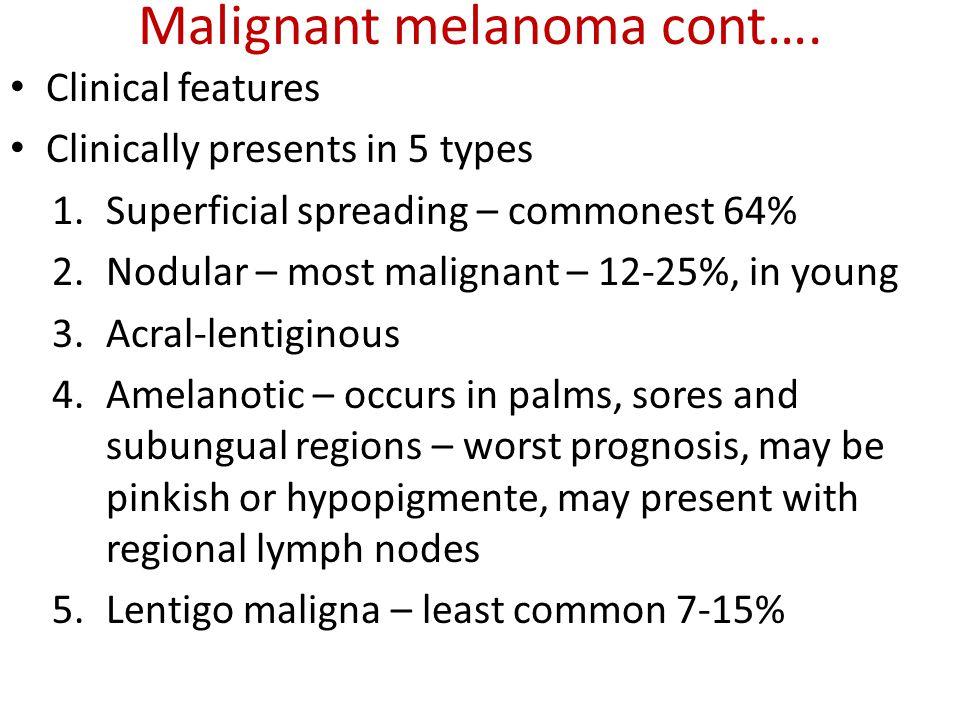 Malignant melanoma cont….
