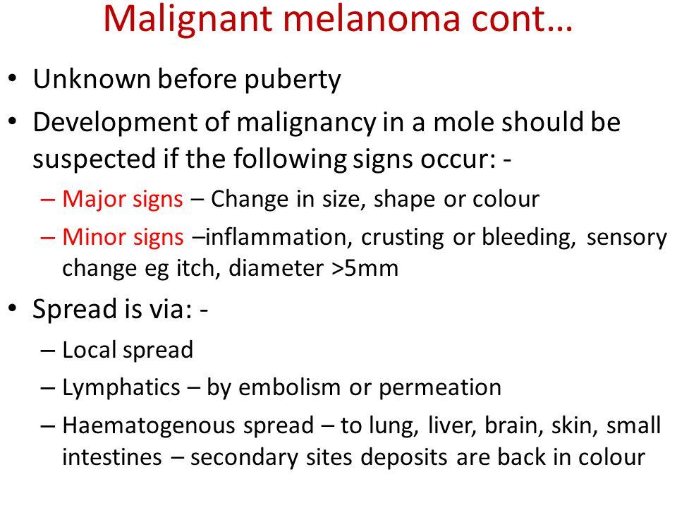 Malignant melanoma cont…