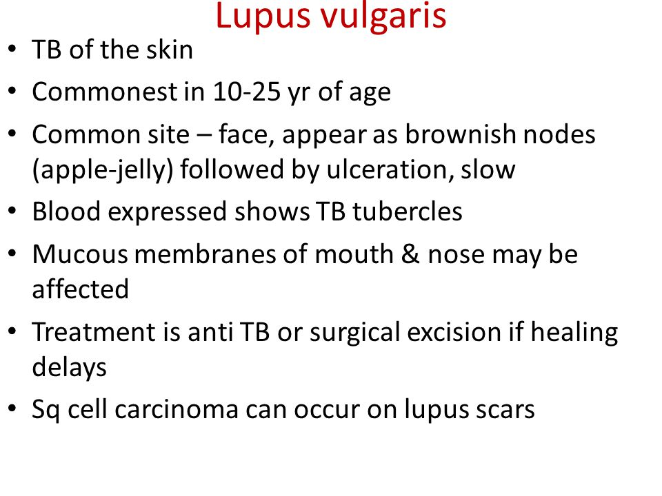 Lupus vulgaris TB of the skin Commonest in 10-25 yr of age