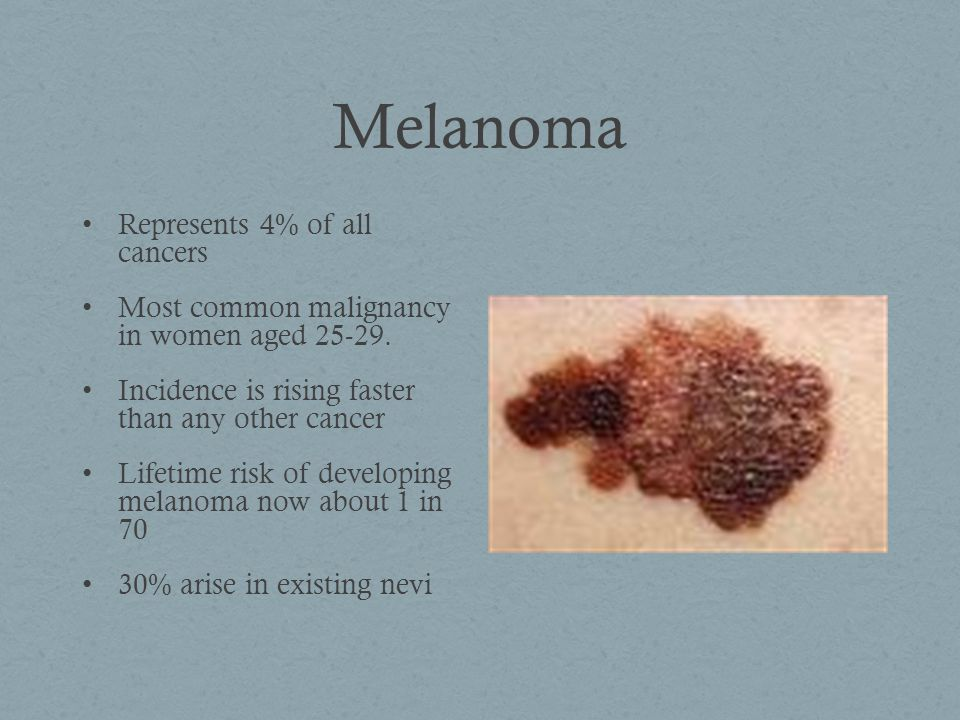 Melanoma Represents 4% of all cancers