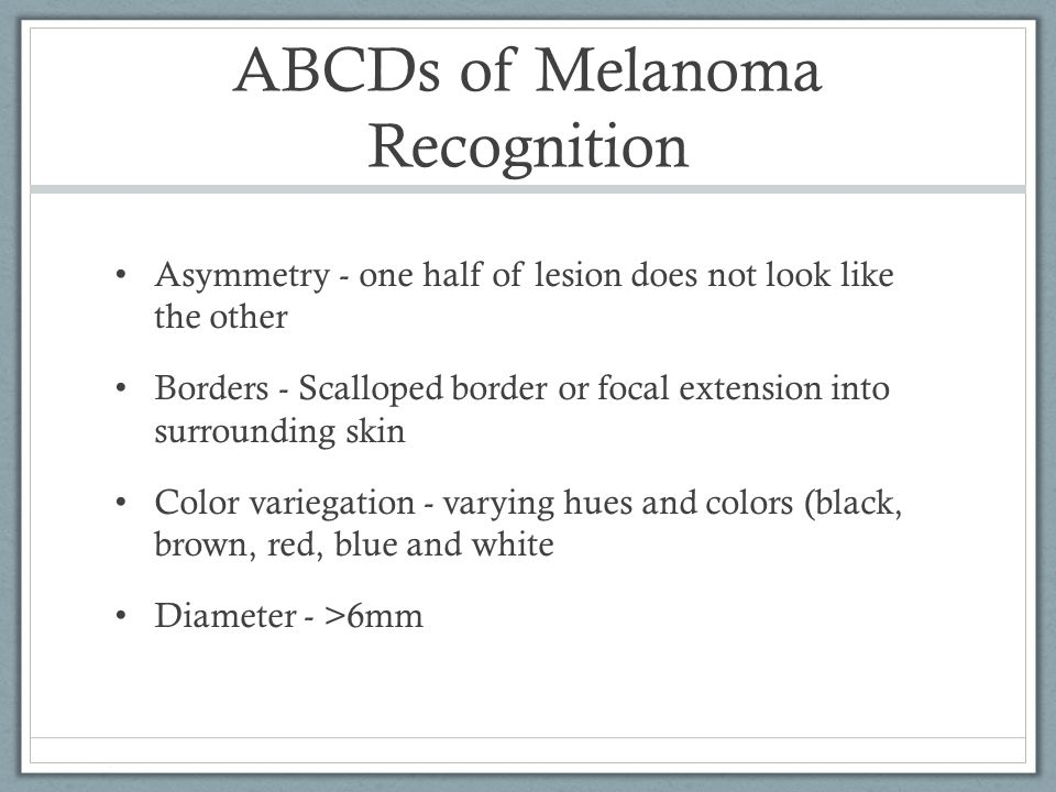 ABCDs of Melanoma Recognition