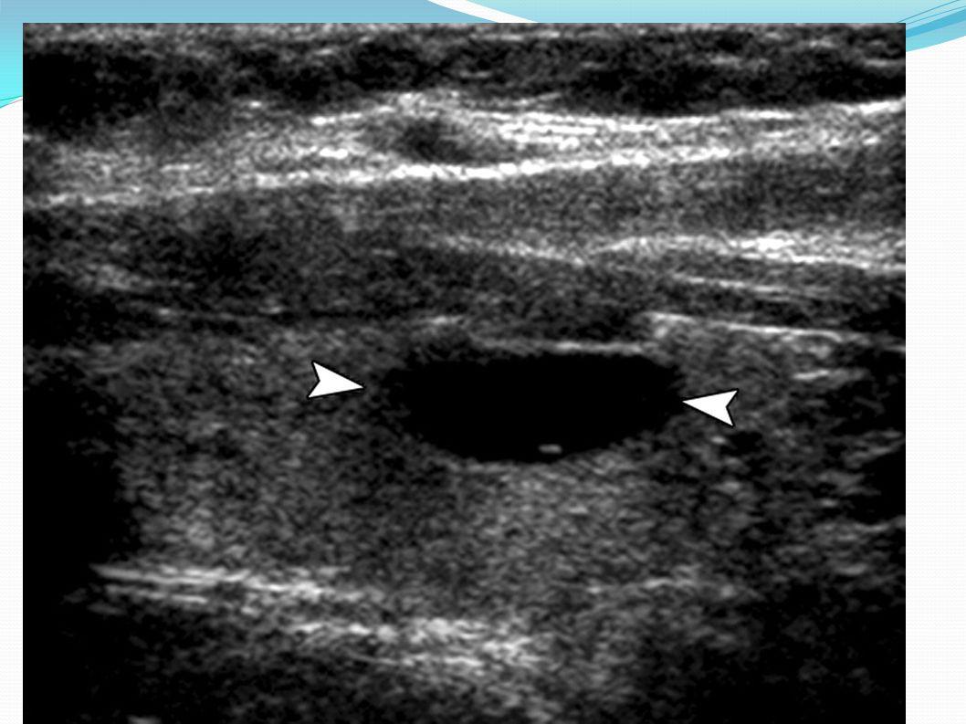 Sagittal image of cystic nodule (arrowheads)