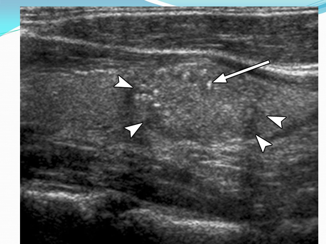 Sagittal US image of nodule (arrowheads) containing multiple fine echogenicities (arrow) with no comet-tail artifact.