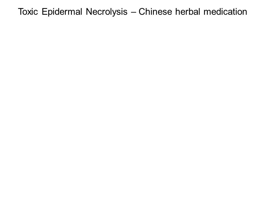 Toxic Epidermal Necrolysis – Chinese herbal medication