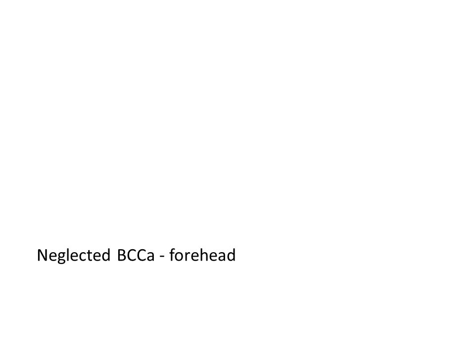 Neglected BCCa - forehead