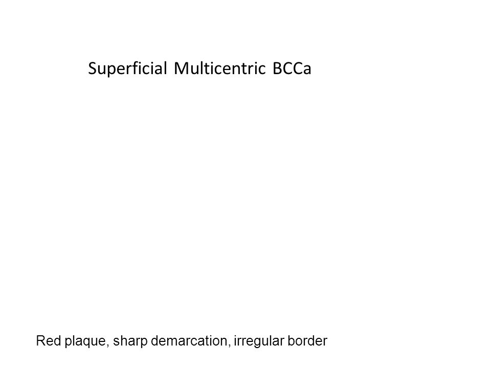 Superficial Multicentric BCCa