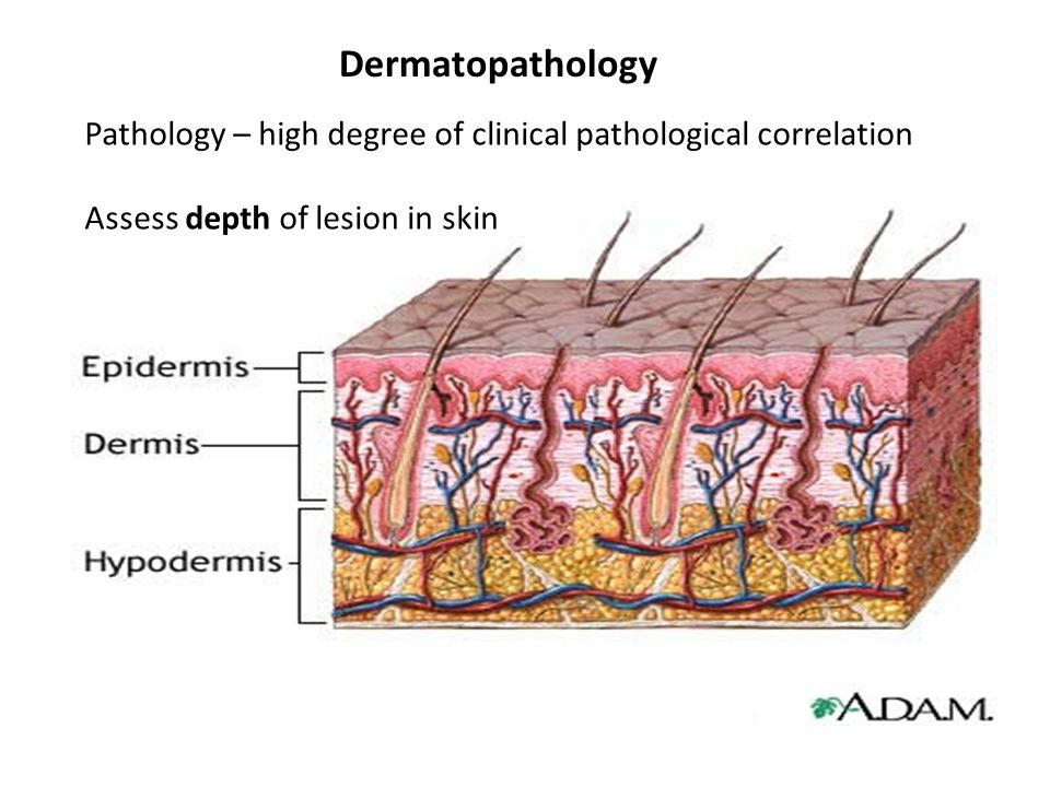 Dermatopathology Pathology – high degree of clinical pathological correlation.