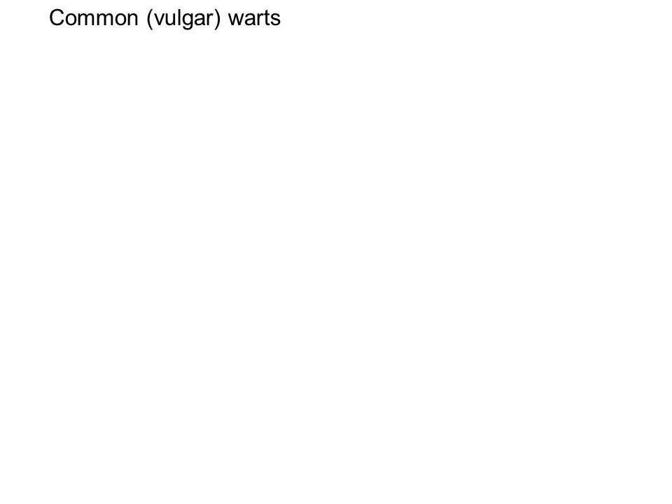 Common (vulgar) warts