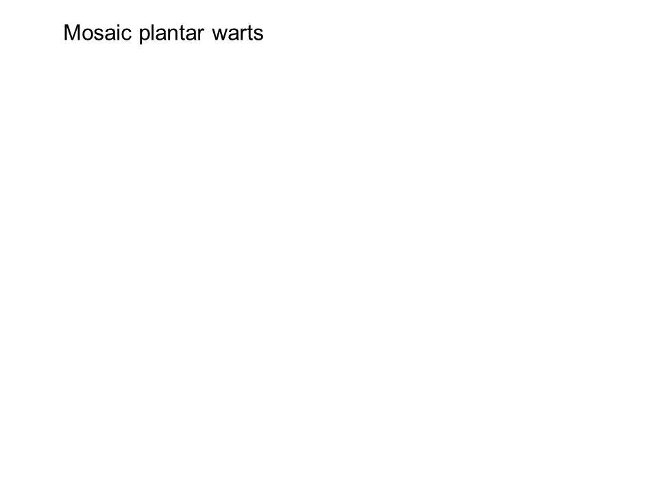 Mosaic plantar warts