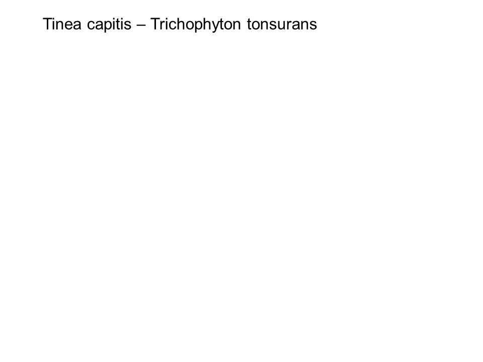 Tinea capitis – Trichophyton tonsurans