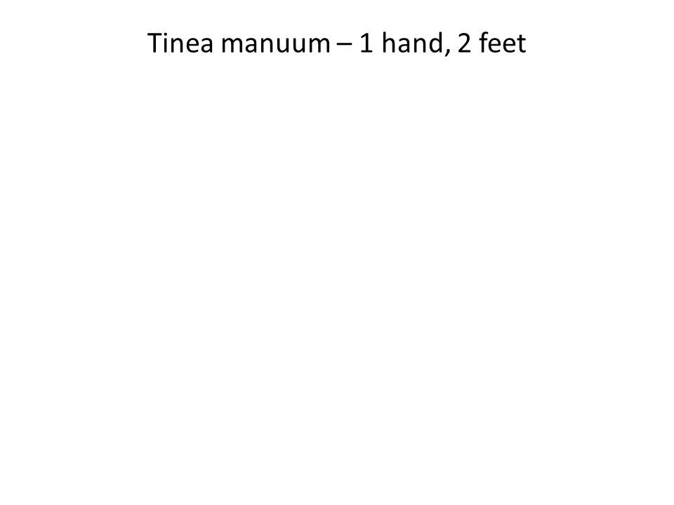 Tinea manuum – 1 hand, 2 feet
