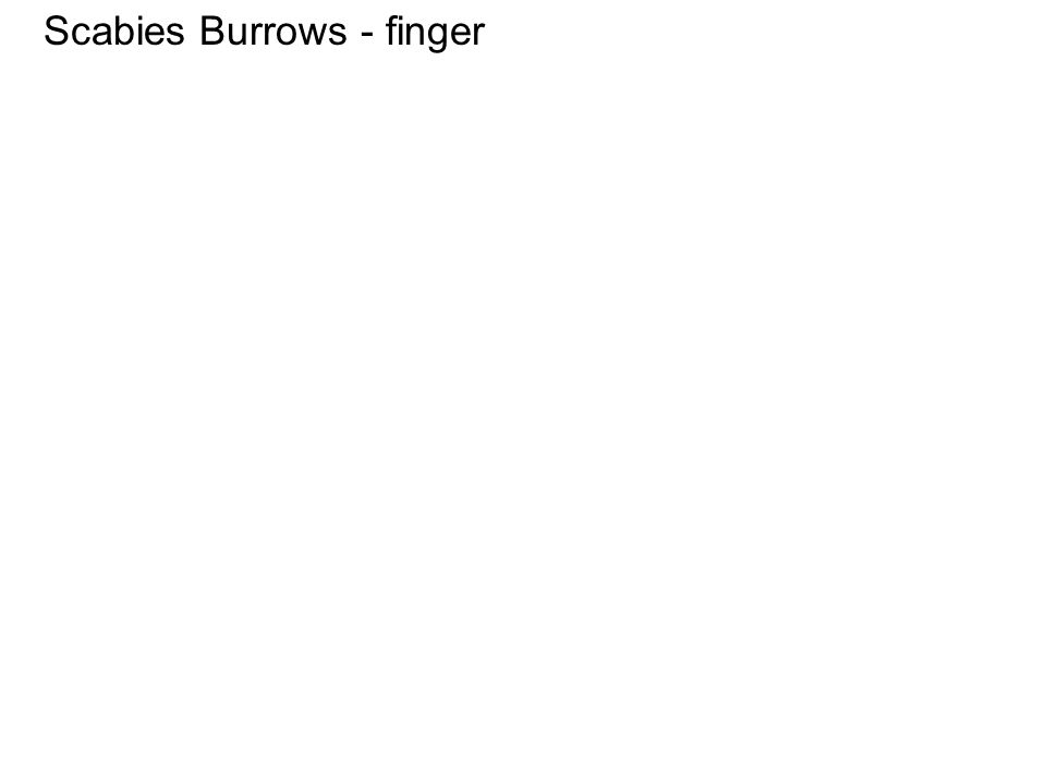 Scabies Burrows - finger