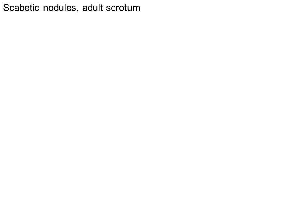 Scabetic nodules, adult scrotum