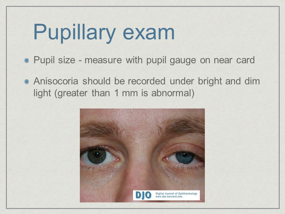 Pupillary exam Pupil size - measure with pupil gauge on near card