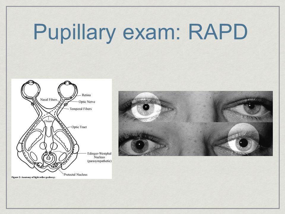Pupillary exam: RAPD sft.jpg