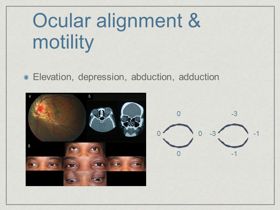 Ocular alignment & motility