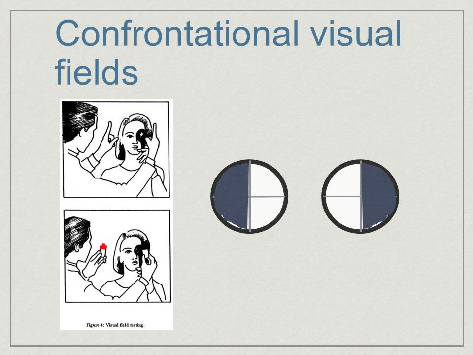Confrontational visual fields