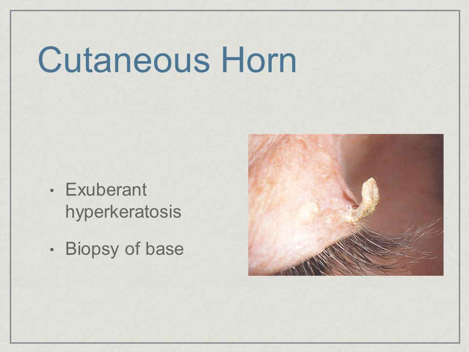 Cutaneous Horn Exuberant hyperkeratosis Biopsy of base