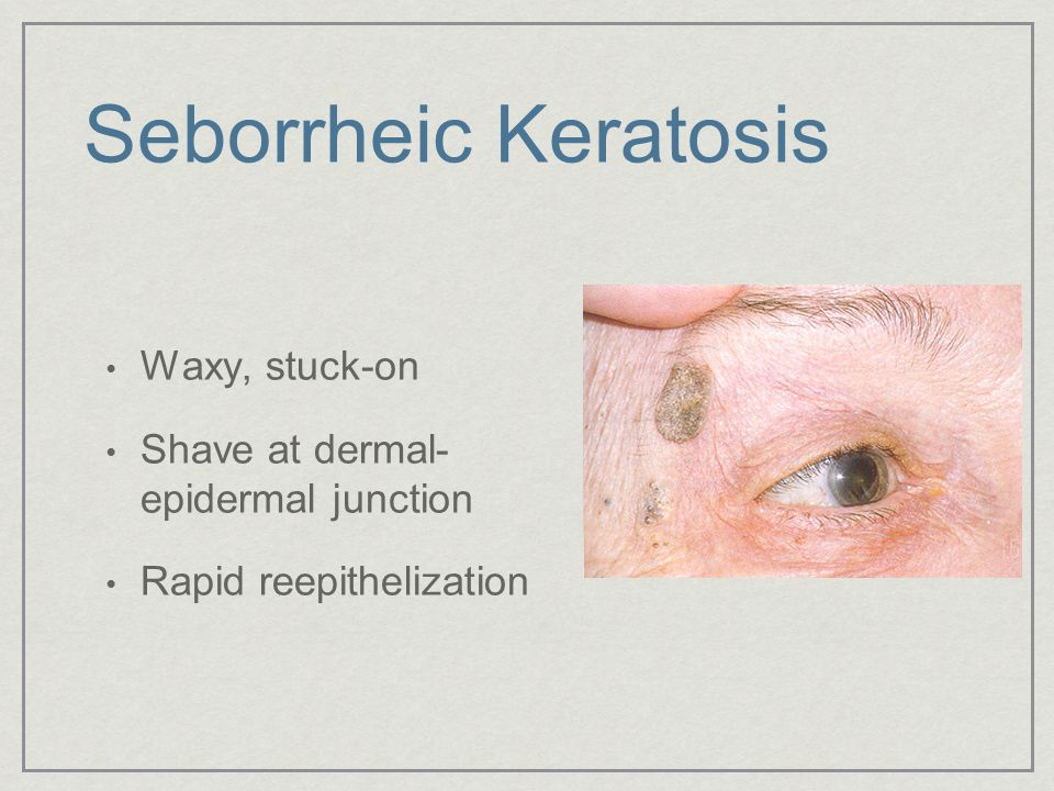 Seborrheic Keratosis Waxy, stuck-on