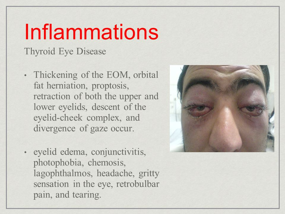 Inflammations Thyroid Eye Disease