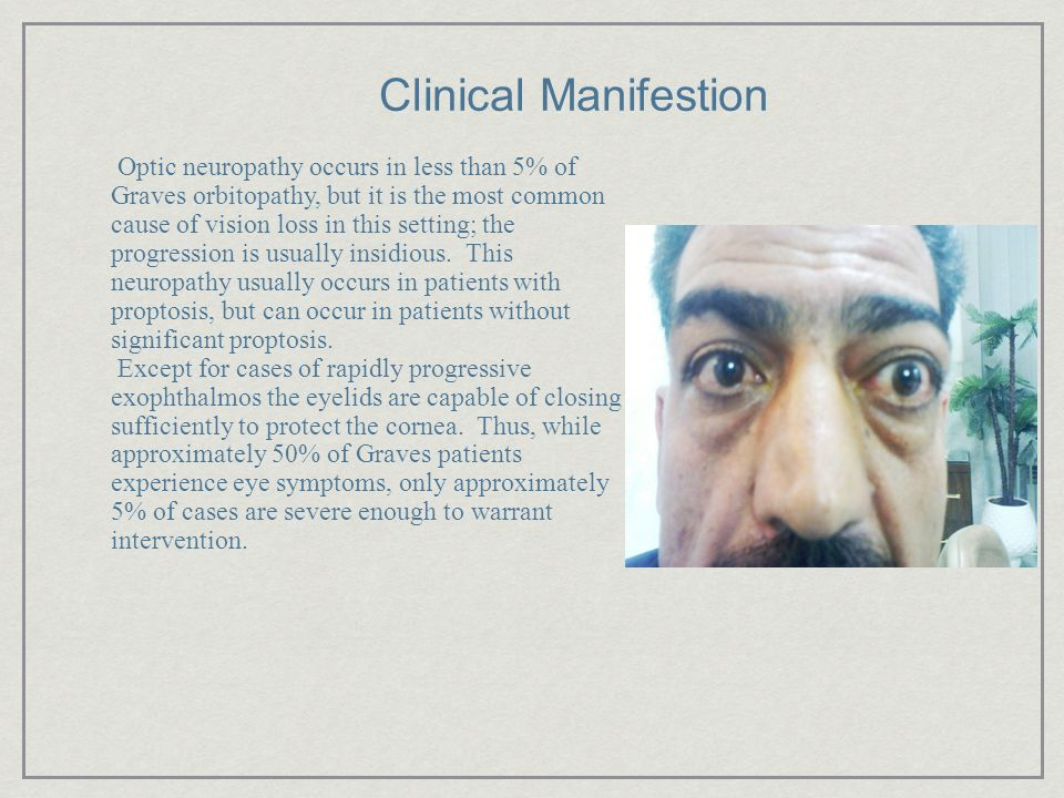 Clinical Manifestion