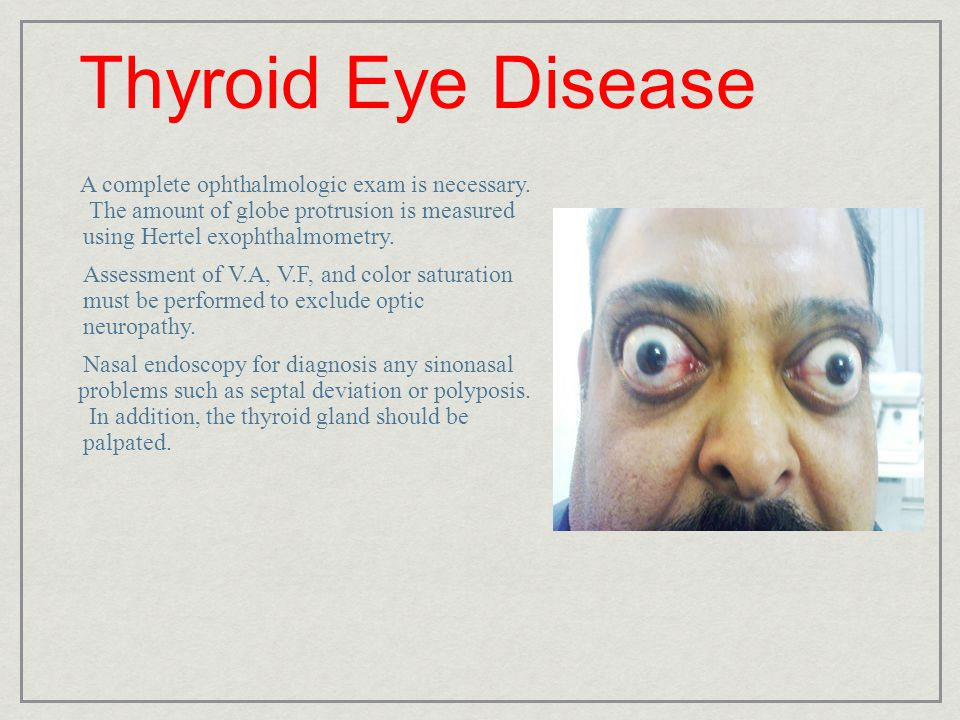 Thyroid Eye Disease A complete ophthalmologic exam is necessary. The amount of globe protrusion is measured using Hertel exophthalmometry.