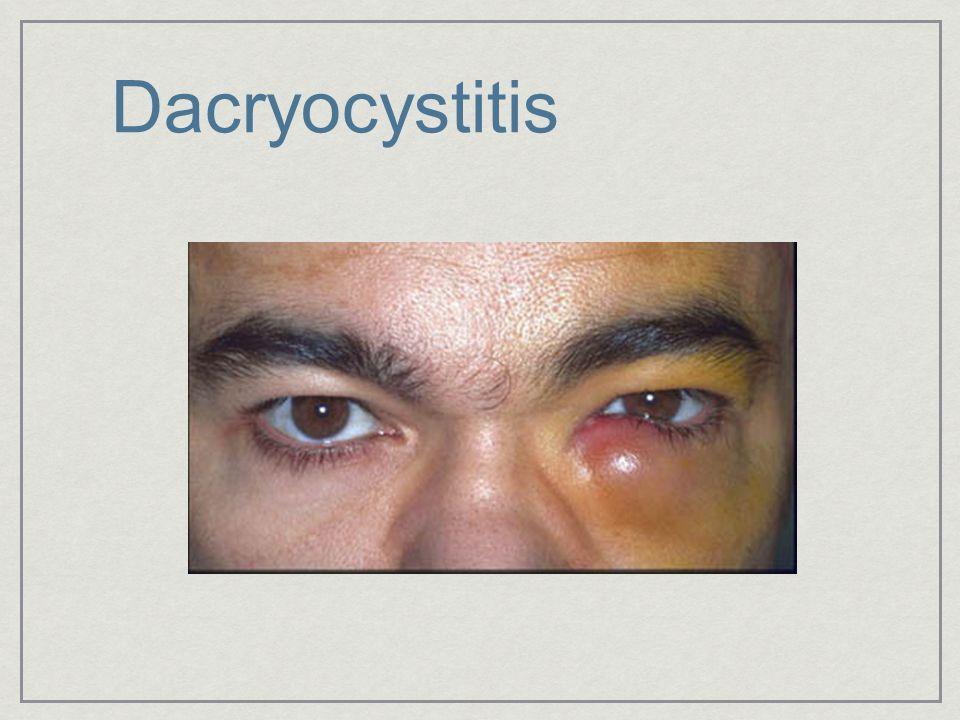 Dacryocystitis
