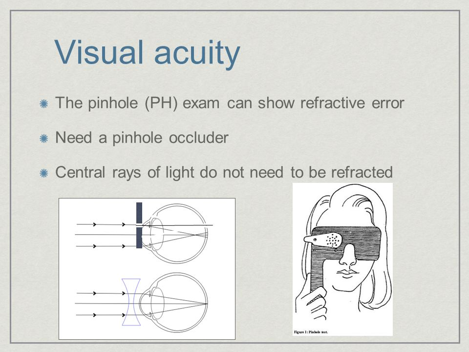 Visual acuity The pinhole (PH) exam can show refractive error