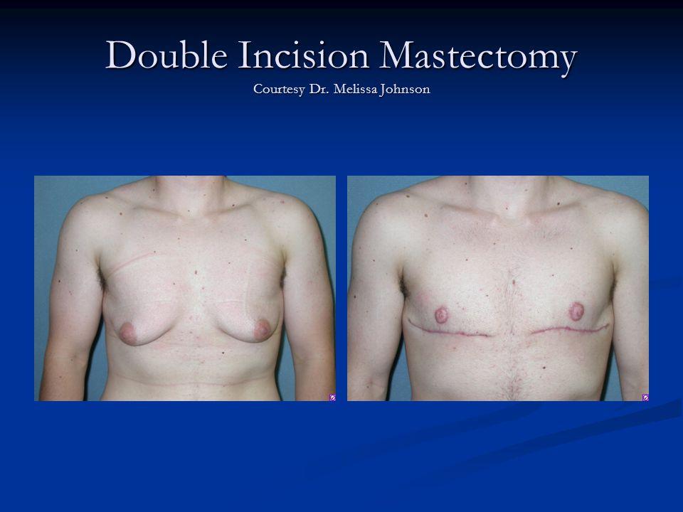 Double Incision Mastectomy Courtesy Dr. Melissa Johnson