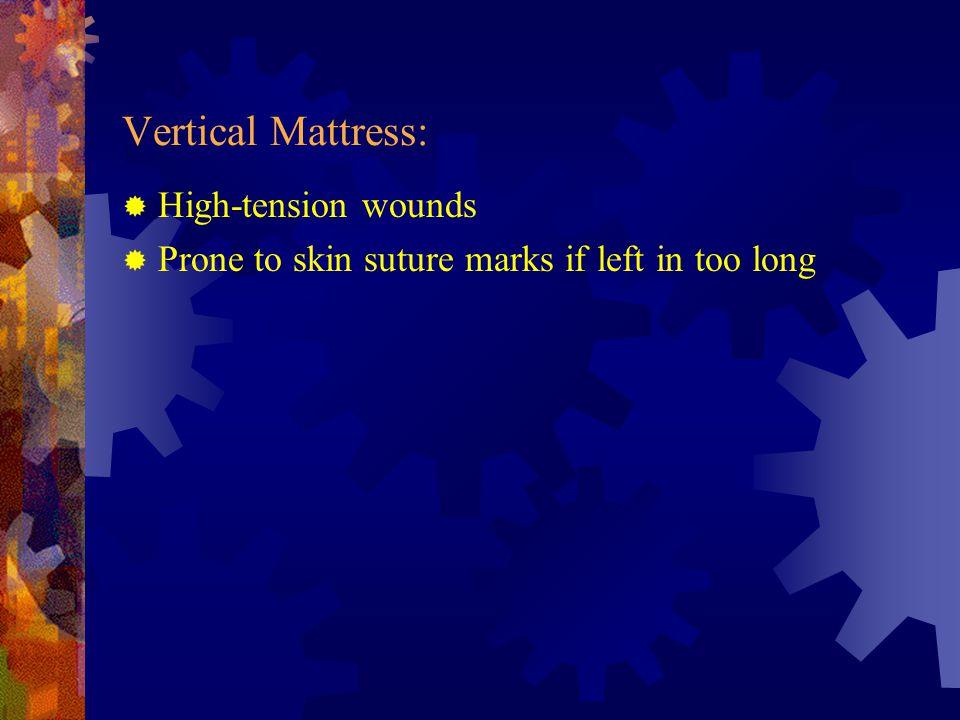 Vertical Mattress: High-tension wounds