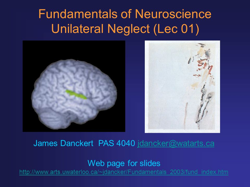 Fundamentals of Neuroscience Unilateral Neglect (Lec 01)