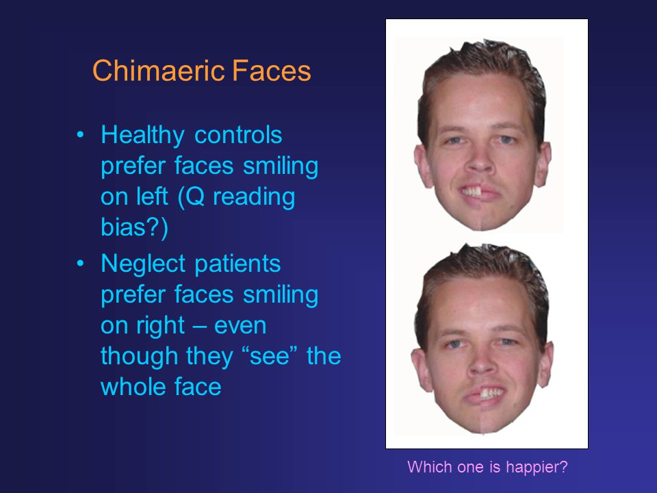 Chimaeric Faces Healthy controls prefer faces smiling on left (Q reading bias )