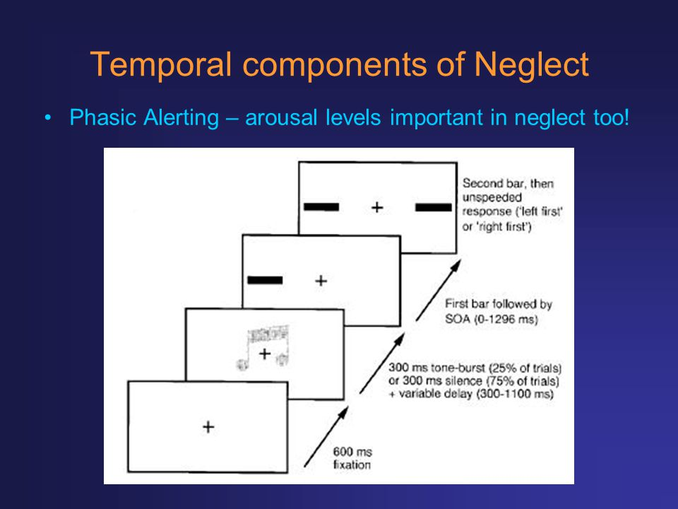 Temporal components of Neglect