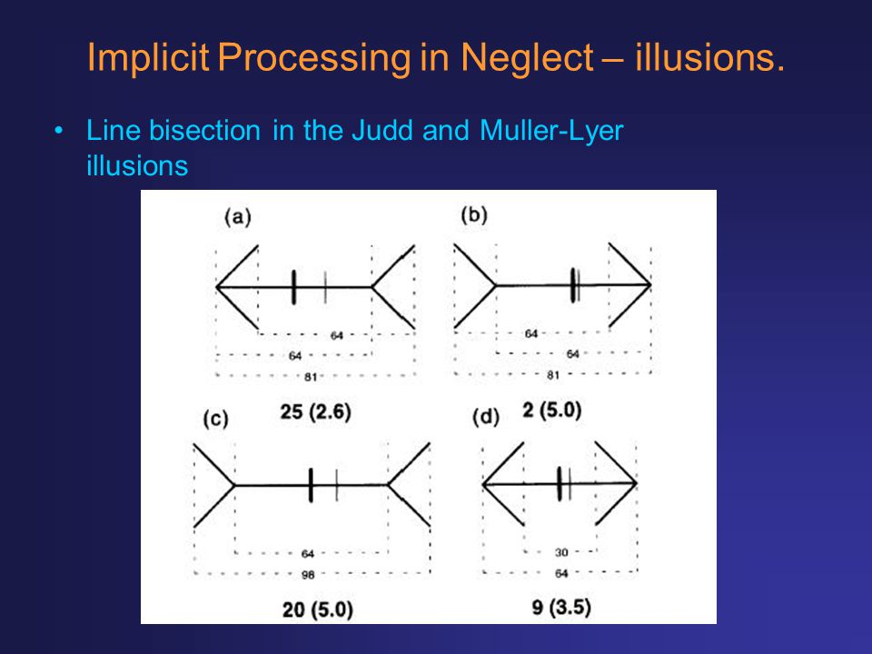 Implicit Processing in Neglect – illusions.