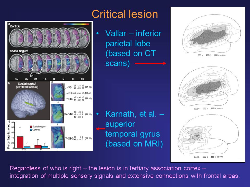 Critical lesion Vallar – inferior parietal lobe (based on CT scans)