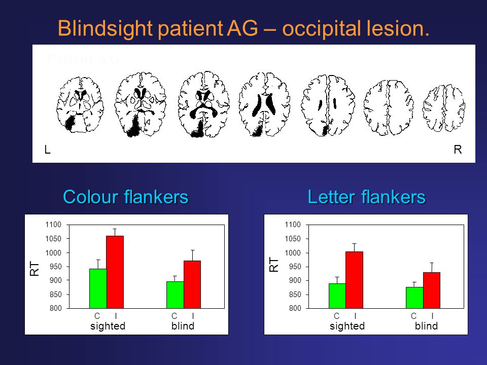 Blindsight patient AG – occipital lesion.