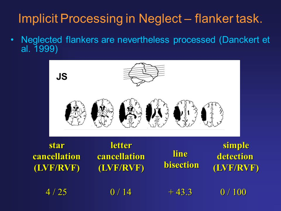 Implicit Processing in Neglect – flanker task.
