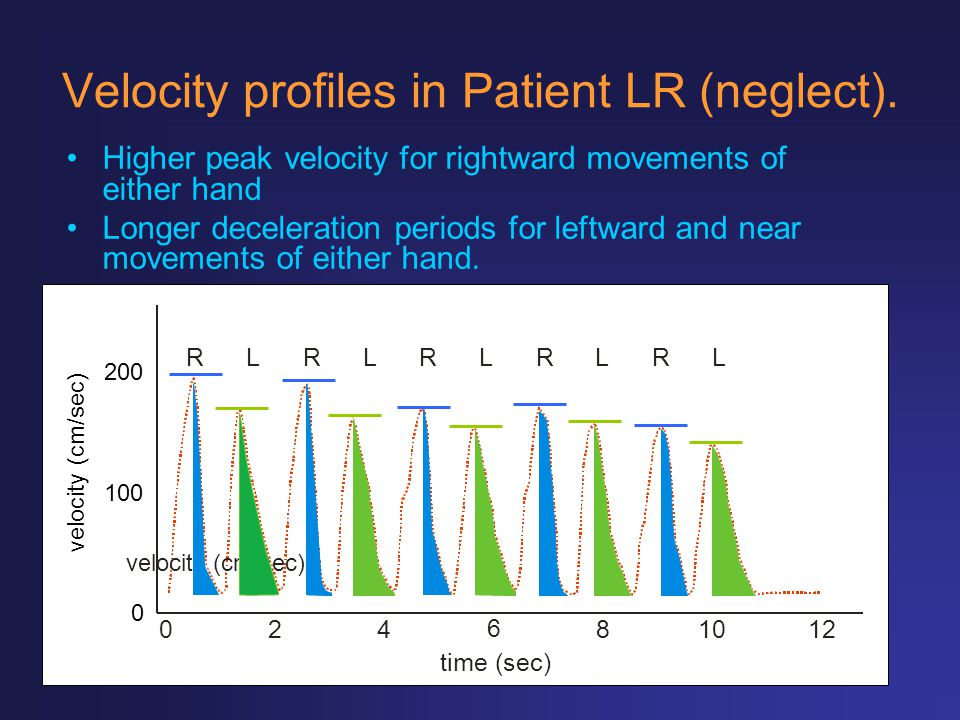 Velocity profiles in Patient LR (neglect).